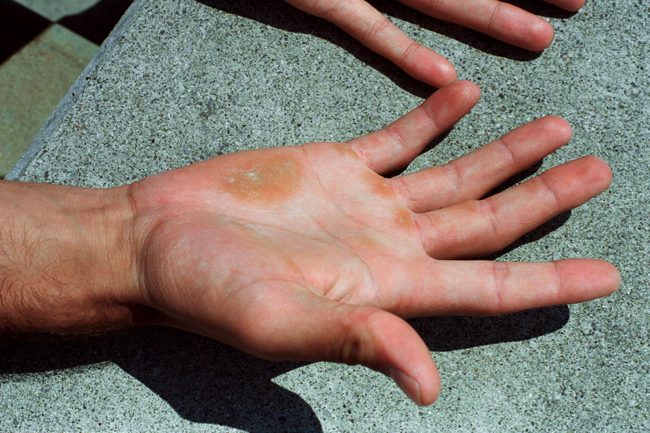 Lukas Wassmann-the hands of roger federer 2001